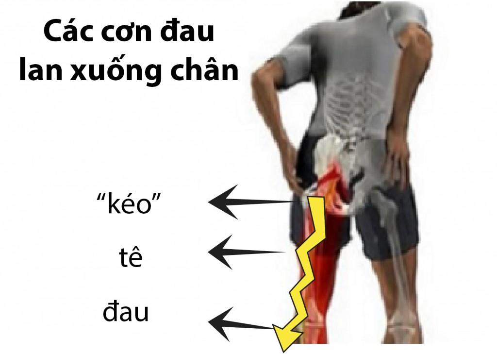 Những nguy hiểm của thoát vị đĩa đệm cột sống thắt lưng