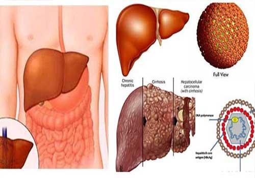 Cách điều trị viêm gan b hiệu quả nhất